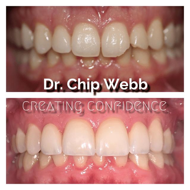 general dentistry orthodontics do good dental smile gallery image 01
