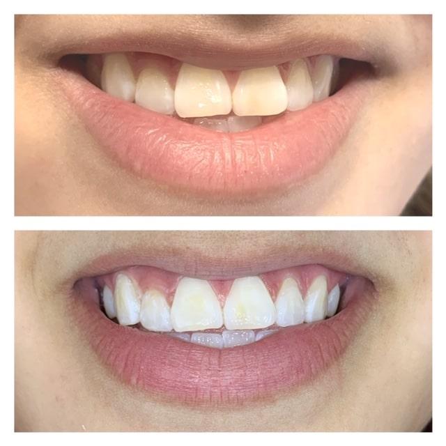 general dentistry orthodontics do good dental smile gallery image 02