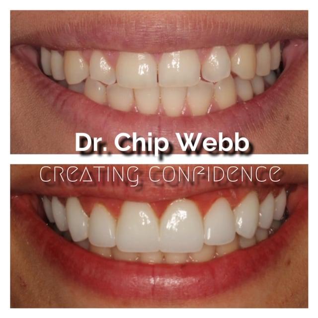 general dentistry orthodontics do good dental smile gallery image 03