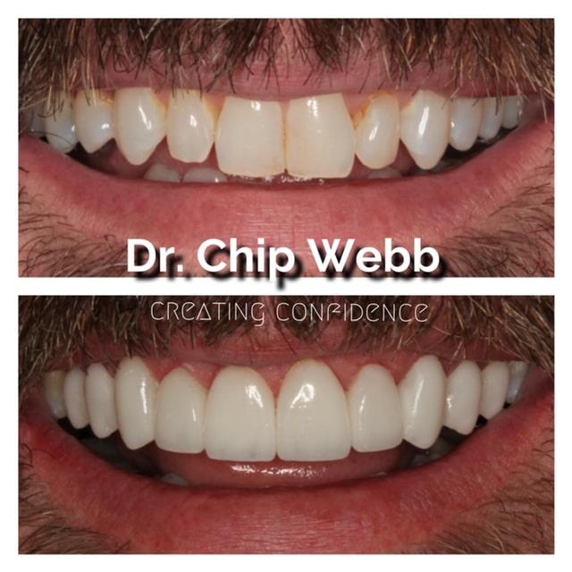 general dentistry orthodontics do good dental smile gallery image 05
