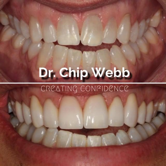 general dentistry orthodontics do good dental smile gallery image 06