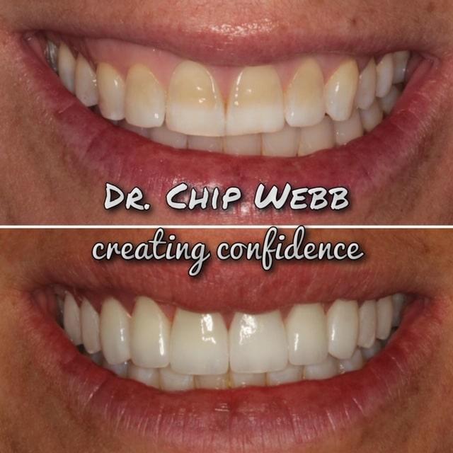 general dentistry orthodontics do good dental smile gallery image 07