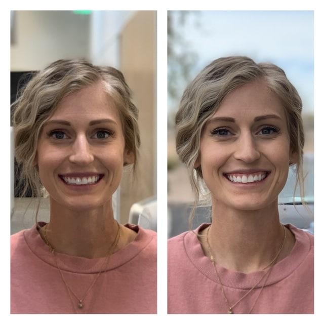 general dentistry orthodontics do good dental smile gallery image 08