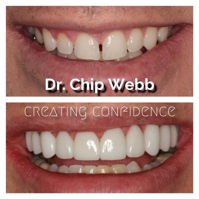 general dentistry orthodontics do good dental smile gallery image 12
