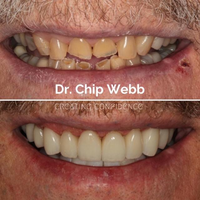 general dentistry orthodontics do good dental smile gallery image 13
