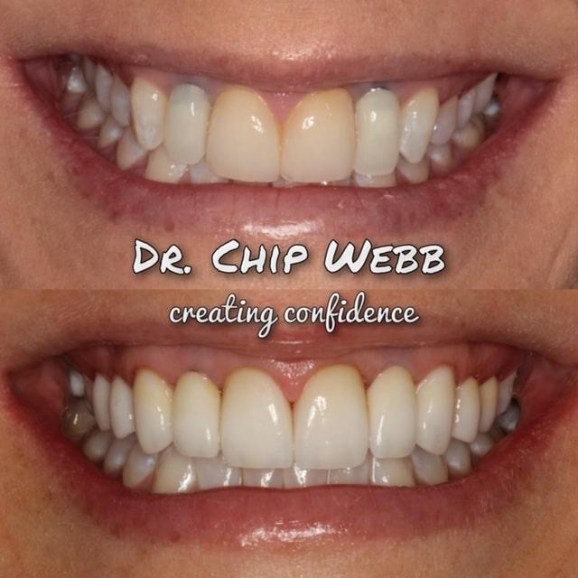 general dentistry orthodontics do good dental smile gallery image 14